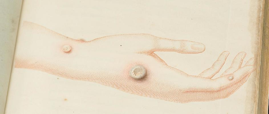 Hand mit Kuhpocken-Läsion; Abbildung in: Jenner, Edward, 1749-1823. Inquiry into the causes and effects of the variolae vaccinae. Foto: National Library of Medicine (Public Domain)