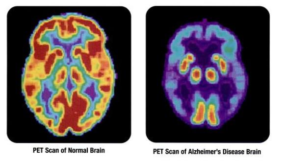 PET Scan eines gesunden und eines durch Alzheimer veränderten Gehirns, Wikimedia Commons (Health and Human Services Department, National Institutes of Health, National Institute on Aging)